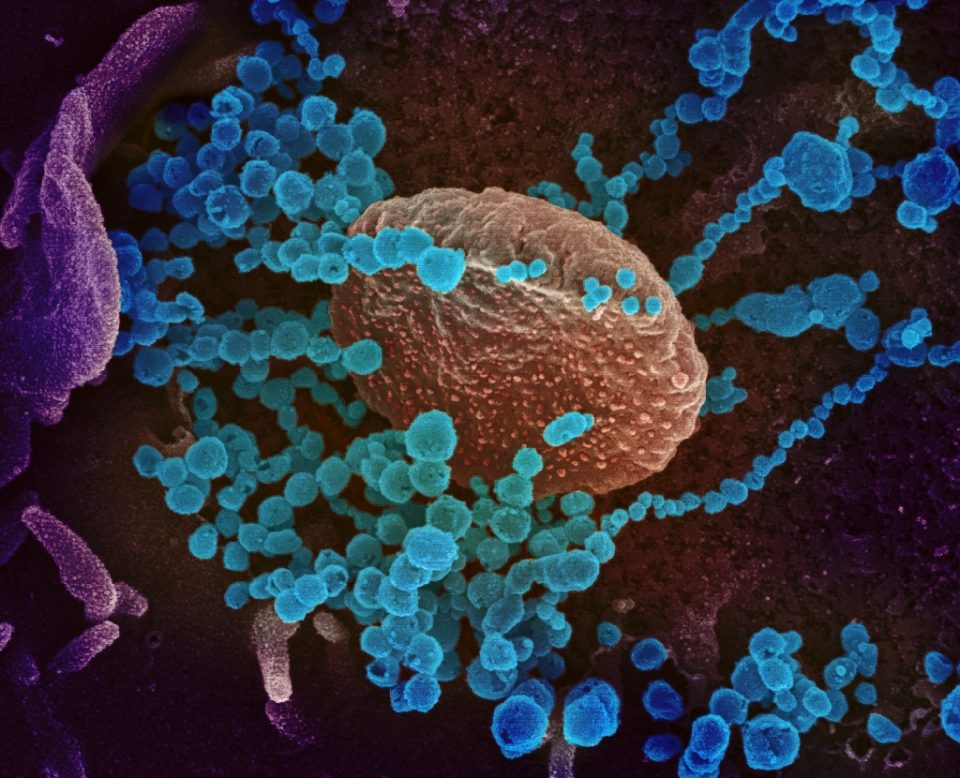 Sanning electron microscope image of the new coronavirus (round blue objects) emerging from the surface of cells cultured in the lab, courtesy of the The National Institutes of Health. The US has recorded more than 14,000 infections - Handout / ©AFP